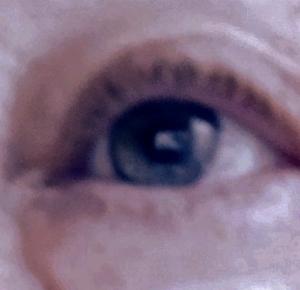 my rt eye